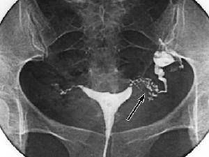Диагностика непроходимости маточных труб