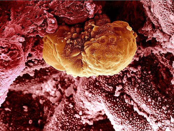 Остановка эмбриогенеза при ЭКО, причины.