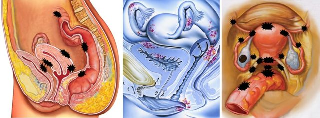 Возможно ли забеременеть при эндометриозе