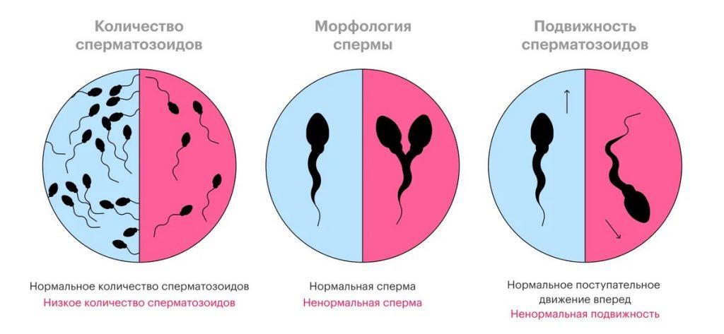 Что показывают результаты спермограммы