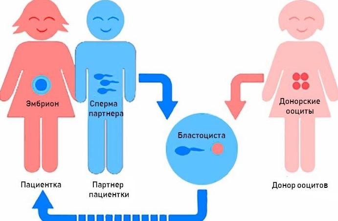 Программы с использованием донорских женских половых клеток – ооцитов (яйцеклеток)