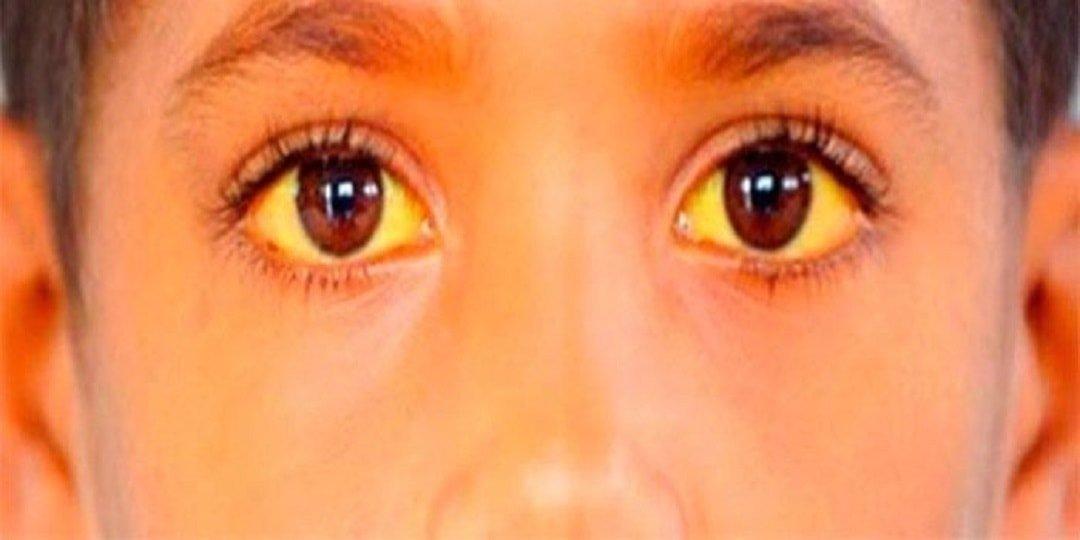 Синдром Жильбера — симптомы и лечение