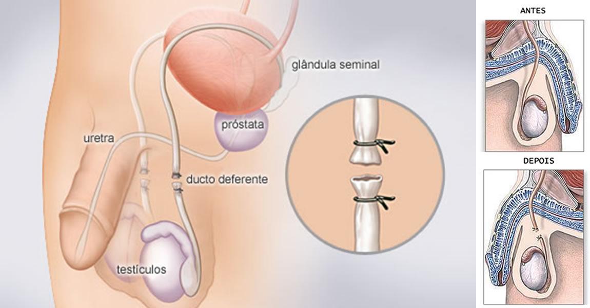 Как проводится вазэктомия
