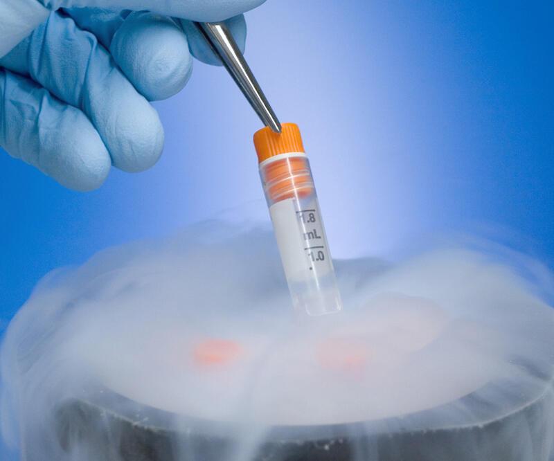 Криоконсервация женских половых клеток